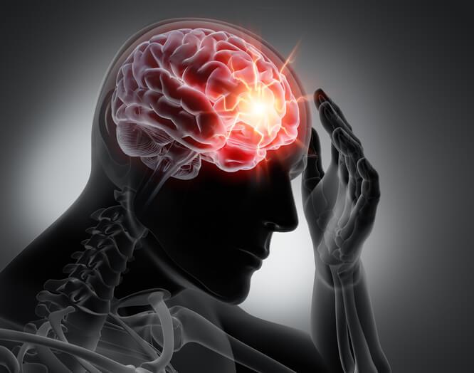 concussion vs tbi