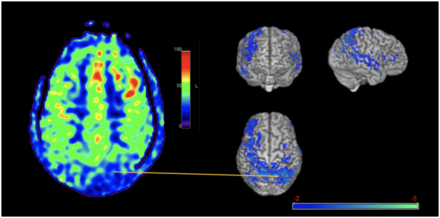 Clinical utility of arterial spin labeling for brain injury