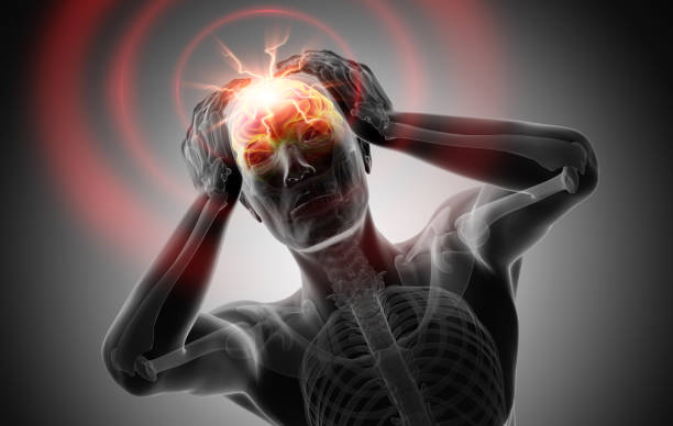 3D render of a man with strong pain in head - Grayscale Image