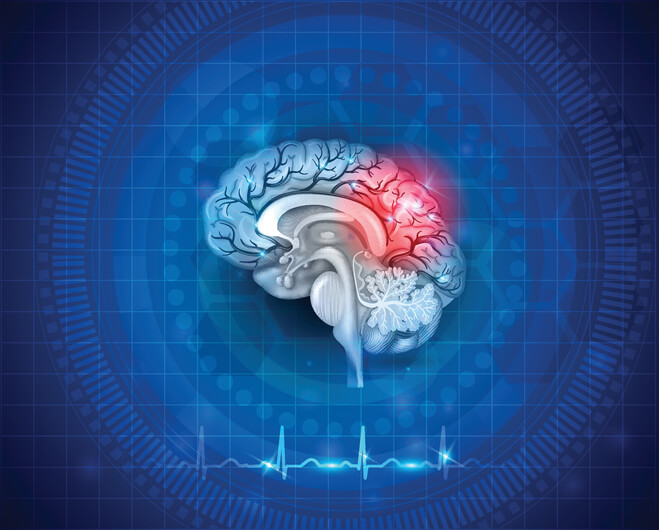 treatment for post concussion syndrome